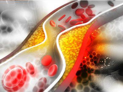 Vitamin D-Mangel und Cholesterin
