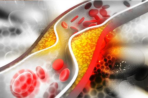 cholesterinwerte normalwerte