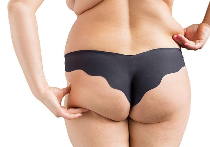 Vitamin D gegen Übergewicht