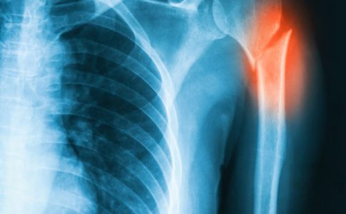 Vitamin-D bei Osteoporose