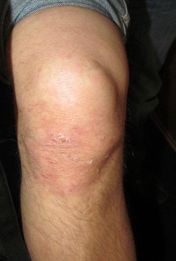 Atopitscheski die Hautentzündung bei den Kindern komarowski die Gründe