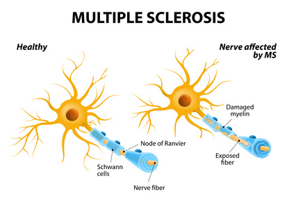 Multiple Sklerose Grafik