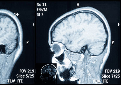 Sehnnerv Röntgenbild